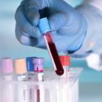 Coronavirus testing labs in india